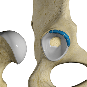 Hip Trauma Reconstruction
